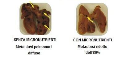 Metastasi diffuse senza micronutrienti e ridotte con micronutrienti