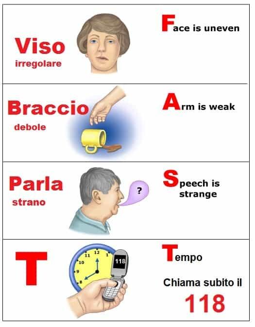 Ischemia ed emorragia cerebrale: segni e sintomi 2 -