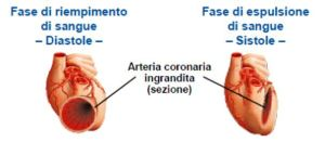 Malattie cardiache coenzima q10