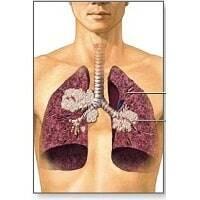 Gli-antiossidanti-fanno-bene-ai-polmoni 1 -