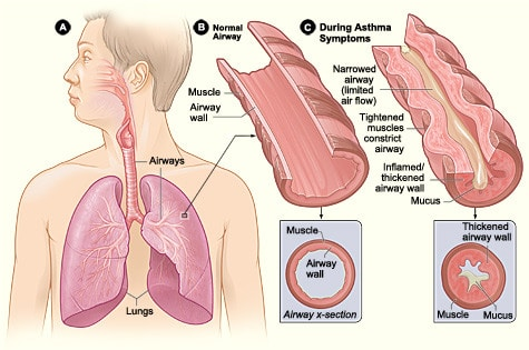 Gli antiossidanti fanno bene<br> ai polmoni sani e agli asmatici 3 -